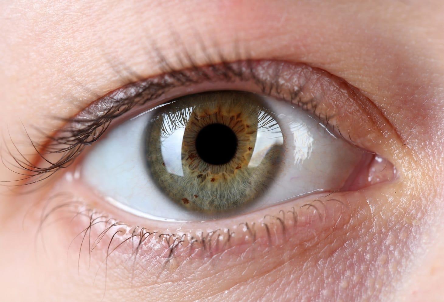 Occhi Irritati Ecco I Consigli Per Mantenerli Idratati