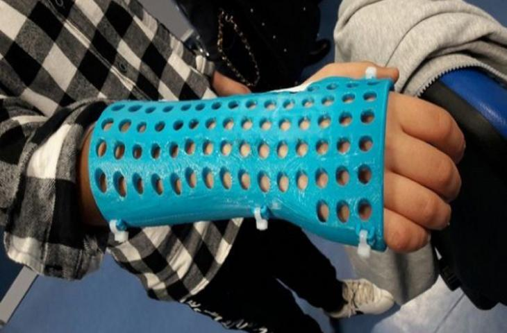 Medicina e innovazione: plastica al posto del gesso